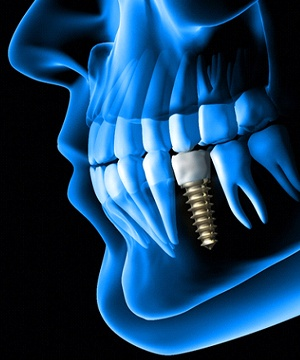 Dental implant in jaw