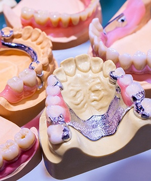 partial dentures sitting on a model of a mouth