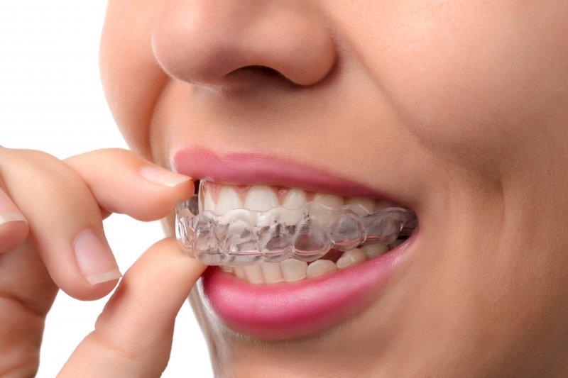 young woman wearing Invisalign